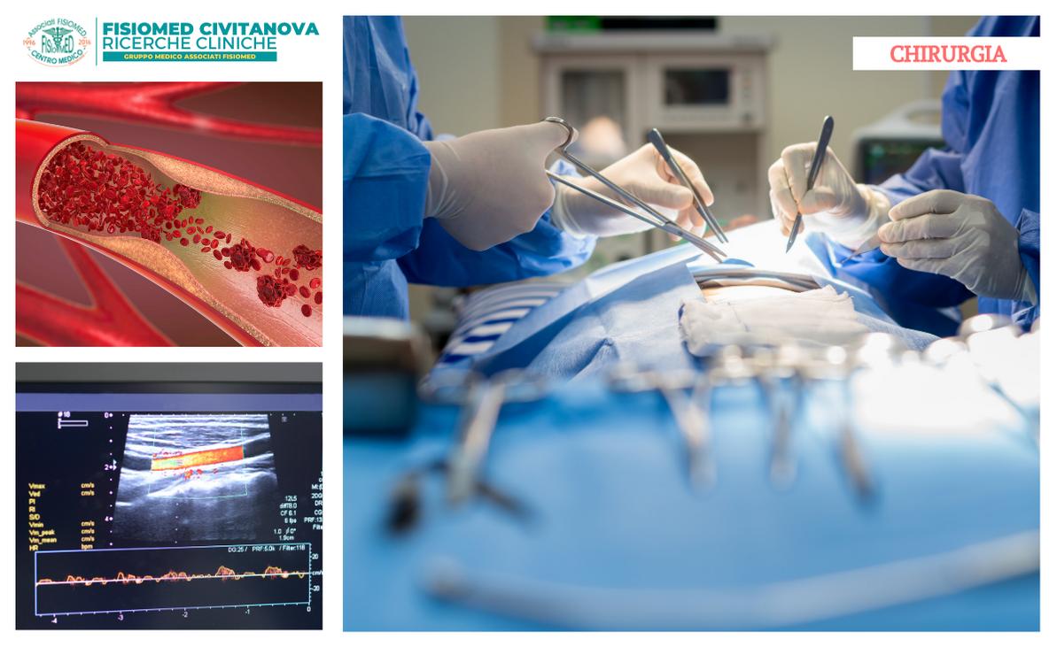 chirugia generale e vascolare civitanova fisiomed marche